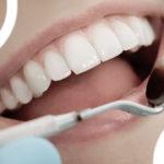 Tout savoir sur les facettes dentaires