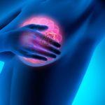 Nouvelle avancée dans le cancer du sein