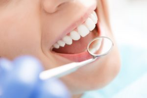 Perte de dents et troubles cognitifs