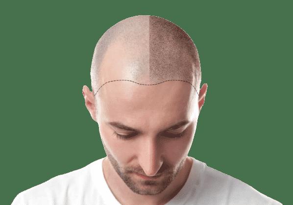 calvitie et greffe de cheveux