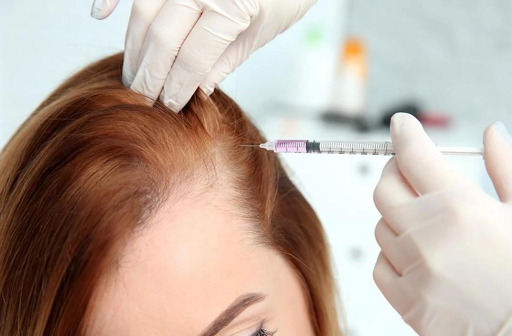 traitement capillaire et greffe de cheveux femme